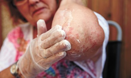 Understanding eczema key to managing, treating it