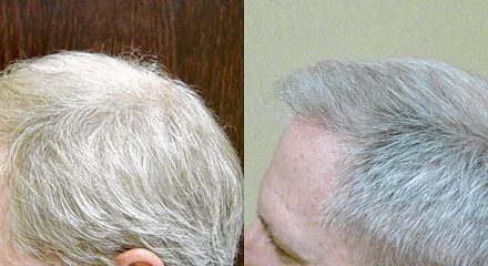 NeoGraft transplant: Road map to a full head of hair