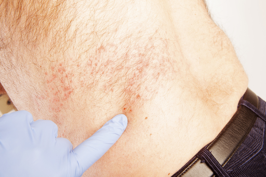 Shingles vaccine recommended for adults 60 and older