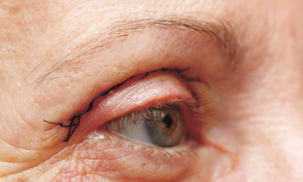 The eyes have it: Benefits of eyelid surgery are clear