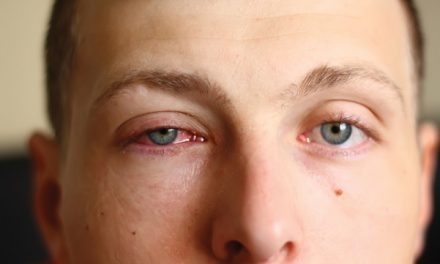 Different types of pink eye require different treatments