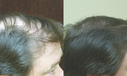 Hair transplant can be considered life-time investment