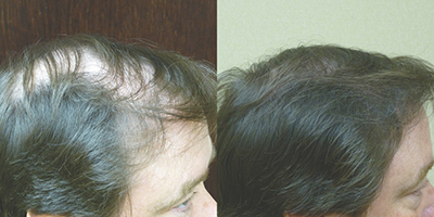 NeoGraft plan for hair restoration a lifetime investment