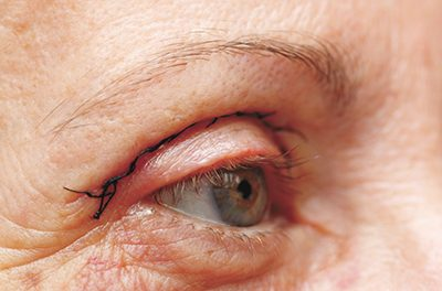 The evolution of cosmetic eyelid surgery