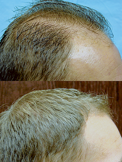 Frequently asked questions about hair transplants