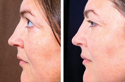 'Double chin' or 'turkey neck' surgery improves profile