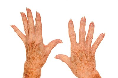What are age spots and how can you get rid of them?