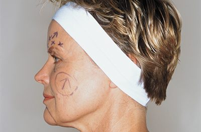 Answers to questions about various types of facelifts