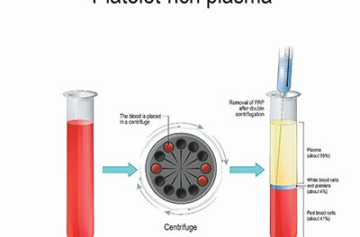What is 'platelet rich plasma' and how is it used?