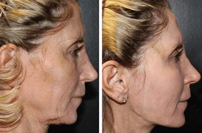 Effective radio frequency  devices for skin tightening
