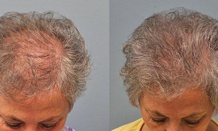 Hair transplant restoration  is not just for men