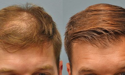 Q and A for hair loss (alopecia) and hair transplants