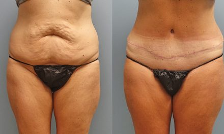 Drainless tummy tucks make procedure more appealing