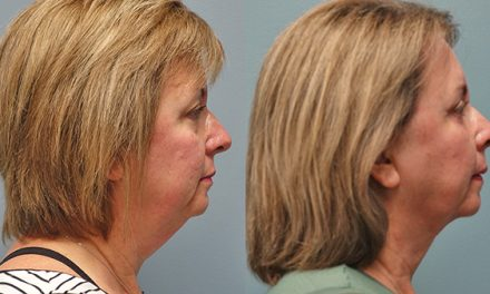 Various treatments available for wrinkles, double chins