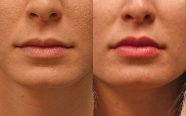 Treatments that could aid in reversing look of aging mouth