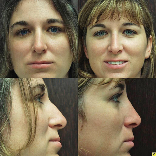 Other than time, what's involved with a rhinoplasty?
