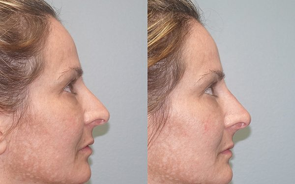 Noses, age and trauma: non-surgical treatment an option